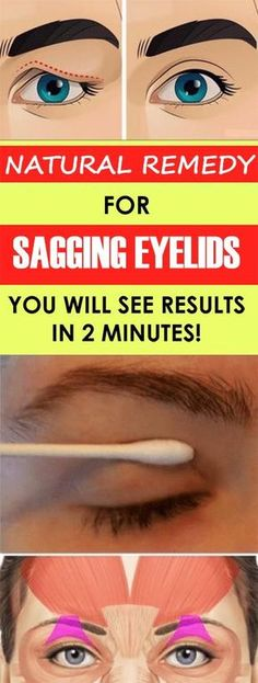 Natural Remedy for Sagging Eyelids You Will See Results In 2 Minutes! : Natural Remedy for Sagging Eyelids You Will See Results In 2 Minutes! Natural Medicine, Herbal Medicine, Medicine Book, Saggy Eyelids, Sagging Skin, Big Eyelids, Health And Beauty, Health And Wellness, Health Advice