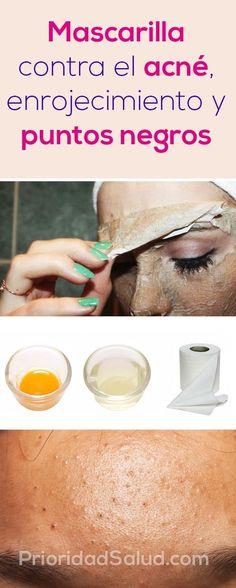 Suffering From Acne? Top Ways To Eliminate Acne – Fashion Trends Beauty Care, Beauty Skin, Beauty Hacks, Beauty Ideas, Diy Beauty, Face Beauty, Homemade Beauty, Beauty Guide, Beauty Secrets