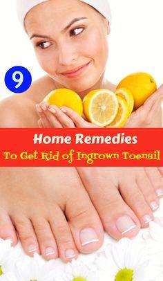 9 Home Remedies to Get Rid of Ingrown Toenail