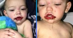 #A Mom's Warning on How Dangerous It Can Be to Kiss a Baby - ATTN:: ATTN: A Mom's Warning on How Dangerous It Can Be to Kiss a Baby ATTN: A…