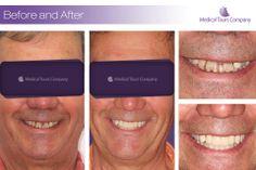 #Dental implants #Dental Crowns #dentist #dental treatment Teeth In A Day, Dental Crowns, Dental Implants, Clinic, Fitbit, Medical, Names, Medical Doctor, Medicine