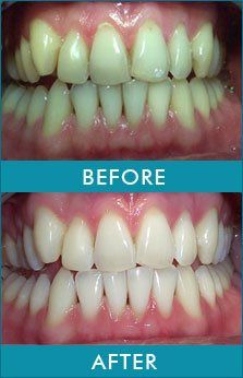 Teeth Whitening - Gazelle Medical Spa