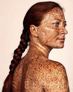 Freckles – De magnifiques photographies en hommage aux taches de rousseur