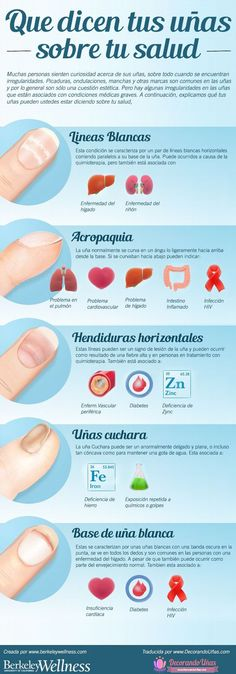 Fingernails Health Meaning Infographic - Video Herbal Remedies, Health Remedies, Natural Remedies, Health Benefits, Health Tips, Health Goals, Health Articles, Med School, Health And Fitness