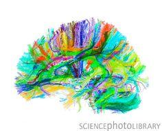 Advanced MRI brain scan