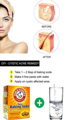 Here Are 15 DIY Hacks, Tips and Tricks That Will Make That Acne Vanish Overnight!