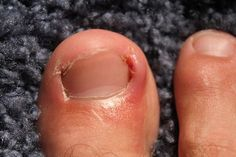 Best Home Remedies to Get Rid Of Ingrown Toenails.There are many reasons it is caused such as not cutting the nails properly, tightly fitted shoes like heels etc. Prevent Ingrown Toe Nails, Ingrown Nail, Toenail Fungus Remedies, Toenail Fungus Treatment, Ingrown Hair Armpit, Nail Infection, Diy Beauty Secrets, Beauty Tips, Essential Oils For Hair