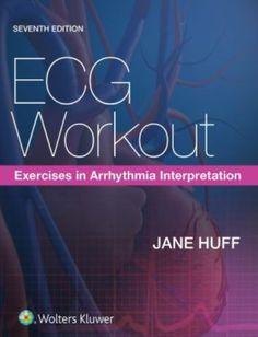 ECG Workout: Exercises in Arrhythmia Interpretation Heart Electrical, Bundle Branch Block, Types Of Books, Workout Exercises, Anatomy And Physiology, Nursing Students, Free Reading, Pediatrics, Reading Online