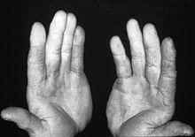 Raynaud-Syndrom – Wikipedia
