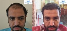 FUE Hair Transplant Result 2800 Grafts HLC: https://www.youtube.com/watch?v=Phek4Mj7EHg