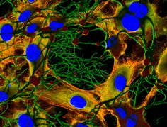 Fibrin clot on HUVEC cell culture (fibrin stained in green, cytoskeleton in orange and nuclei blue) | 2012 Photomicrography Competition | Nikon Small World