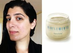 Bioelements Kerafole isn't for sensitive skin, but it definitely brightens and exfoliates dead or dry skin.