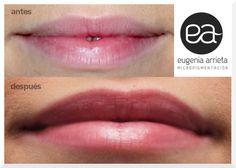 Micropigmentación de labios: Los colores claros y juveniles son los más nos solicitáis para obtener un resultado 100% natural. De esta forma conseguimos definir los rasgos faciales de forma sutil y natural. http://eugeniaarrieta.com/micropigmentacion/micropigmentacion-estetica/micropigmentacion-de-labios/