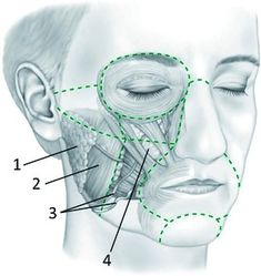 See figure: 'Regions of the cheek: (i) parotid gland, (ii) masseter muscle, (iii) facial artery and vein,.' from publication 'Anatomy of the Cheek: Implications for Soft Tissue Augmentation' on ResearchGate, the professional network for scientists. Botox Fillers, Dermal Fillers, Parotid Gland, Facial Anatomy, Aesthetic Dermatology, Arteries And Veins, Scientists, Salvador, Teeth