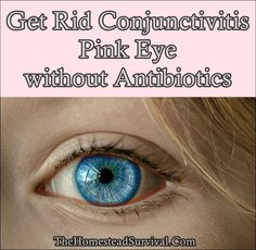 Get Rid Conjunctivitis Pink Eye without Antibiotics Homesteading - The Homestead Survival .Com