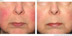 IPL treatments for Rosacea before and After! This is the Lumines M22  that treats many skin care concerns..