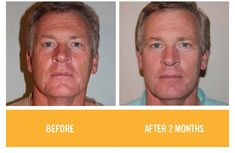 Freckles and sunspots CAN be reversed using the right products and with constantly application!
