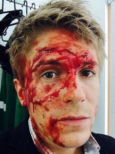 Damn that looks sore Casualty Cast, Adam Rodriguez, Holby City, Makeup Looks, Joker, Actors, Fictional Characters, Film, Tv
