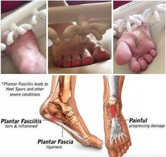 "Plantars Fasciitis is not really a diagnosis; it's a symptom. Broken into its parts, ""plantar"" is the bottom surface of the foot. It's just the anatomical region's name. ""Fascia"" is the anatomical region of the #pain, meaning ""within the fascia"", and ""itis"" means swollen. So, by the very definition of the words #PlantarFasciitis, you can now understand that the #fascia in the bottom of your foot is swollen.  Not only do feet swell, in a lot of cases the fascia is so ""angry"" that it recoils…"