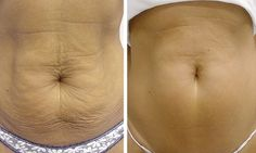 How to Tighten Flabby Skin after Weight Loss...