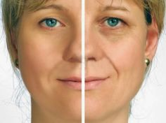 Botox Treatment Houston, TX: Botox cosmetic is a non-surgical treatment designed to reduce the lines and wrinkles on your face and redefine your natural beauty. Your botox treatment specialist near me. Creme Anti Rides, Creme Anti Age, Anti Aging Cream, Pele Natural, Natural Skin, Natural Face Lift, Natural Oils, Natural Facial, Natural Healing