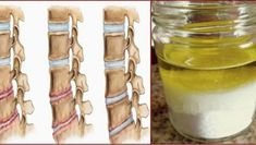 Although it may seem too promising to be completely true this amazing natural remedy will help you relieve all pains due to osteoporosis and after its use you wont feel the pain for several years. Namely you will need to prepare a massage mixture wit Natural Remedies, Mason Jars, Let It Be, Mugs, Bottle, Tableware, Massage, Amazing, Health