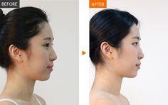 #Banobagi #Plasticsurgery #Cosmeticsurgery #Beauty #Women #Gangnam #Seoul #Korean #Makeover #Life #Health #filler #Artecoll #Koreanfiller #fillerinjection #fillertreatment #kbeauty #beautiful #newlife #changelife #plasticsurgeryinkorea For More Information in English,http://m.engbanobagi.comEmail: english@banobagi.com WhatsApp : +82-10-2216-6508