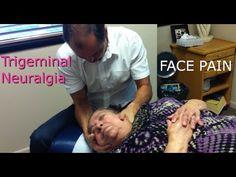 Trigeminal Neuralgia, April's Story - YouTube