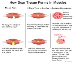 How scar tissue forms in muscles