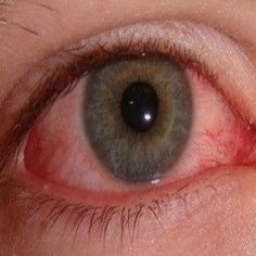 Bloodshot Eyes Home Remedies, Natural Treatments And Cure Natural Pink Eye Remedy, Natural Eyes, Natural Healing, Cold Home Remedies, Natural Home Remedies, Herbal Remedies, Red Eyes Remedy, Bloodshot Eyes, Eye Infections