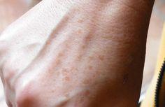 Mezzi per unghie da un fungo