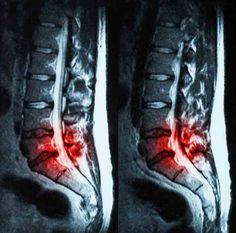 Tout savoir sur la hernie discale lombaire