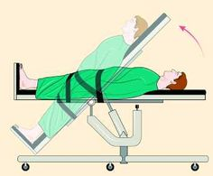 The Poor Man's Tilt Table Test is a helpful tool to see if you should see a doctor about an official TTT or see a POTS specialist. Chronic Illness, Chronic Pain, Fibromyalgia, Neurocardiogenic Syncope, Degenerative Disc Disease, Lyme Disease, Tilt Table, Autonomic Nervous System, Hypermobility