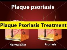 Plaque Psoriasis Treatment - Natural Psoriasis Treatment