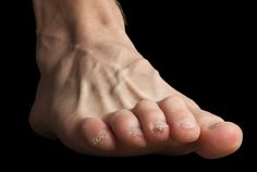 Clawed toes cause weightbearing pressure to be exerted on the end of the toenails (image credit)
