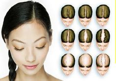 #Hair #Transplant Delhi, India, Low Cost #Hair Transplant, FUE #Hair Transplant  http://sushmacosmeticandplasticsurgery.com/hairtransplant.html  #Hair #Transplant Surgery - Dr. Rajat Gupta,is best hair #transplant #surgeon in Delhi, India, and well known for cheap and best hair transplant, hair implant, hair loss #treatment and hair weaving.