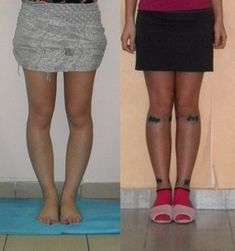 Operative correction of bow legs, knock-knees Bow Legged Correction, Knock Knees, Knee Problem, Go To The Cinema, Mobile Photos, Surgery, Exercises, Mini Skirts, Bows