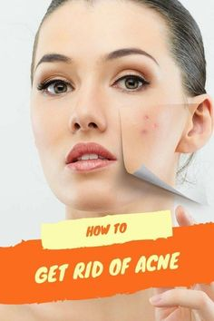 Cystic acne has been a problem for many people since it is caused by cyst; this is why it is also called as cystic acne. It is a much severe and acute condition of acne; cystic acne is nothing but some lumps of inflammation. Pimples Remedies, Natural Acne Remedies, Home Remedies For Acne, Skin Care Remedies, Herbal Remedies, Cystic Acne Treatment, Back Acne Treatment, Acne And Pimples, Acne Skin