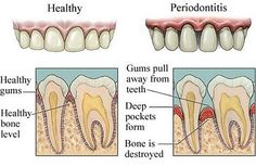 If gingivitis goes untreated, periodontitis (infection around the root of the tooth) can result. Periodontitis, which can affect just a portion of the gumline or the entire gumline, is characterized by plaque-filled pockets between the teeth and gums. Health Guru, Health Class, Health Trends, Dental Care, Dental Hygiene, Dental Health, Oral Health, Gum Health, Dental Assistant