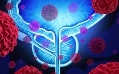 Tumore alla prostata: quanto ne sai? Il tumore della prostata (chiamato anche cancro della prostata) è il tumore più frequente nel maschi prostata cancro pro