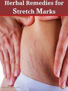 Herbal Remedies for Stretch Marks | Medi Tricks