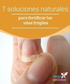 7 soluciones naturales para fortificar las uñas frágiles El debilitamiento de las uñas es un problema que afecta la estética de las manos, ya que dificulta la realización de la manicura y otros tratamientos de belleza.