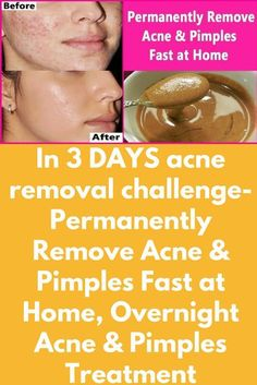 In 3 DAYS acne removal challenge- Permanently Remove Acne & Pimples Fast at Home, Overnight Acne & Pimples Treatment Today I will share home remedies to remove permanently pimple and acne. 1st remedy- Ingredients- 1 tablespoon cinnamon powder 2 tablespoon honey Method- 1. Now take a clean bowl and add 1 tablespoon cinnamon powder and 2 tablespoon honey. Mix them well. 2. Apply this mixture on your face and leave it for 15 minutes. …