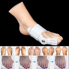 Day-Night-Bunion-Splint-Big-Toe-Corrector-Hallux-Valgus-Straightener-Foot-Care