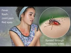 Zika fever reported in Miami: Health officials combat first zika outbrea...