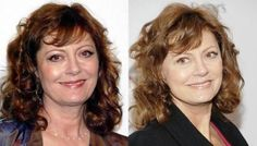 Susan Sarandon Plastic Surgery Before and After picture