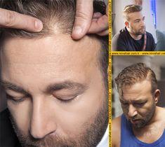 Protez saç hakkında Movies, Movie Posters, Films, Film Poster, Cinema, Movie, Film, Movie Quotes, Movie Theater