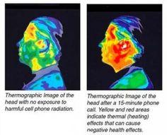 Imágenes del cerebro antes y después de ser impactado por ondas