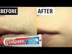 i tuoi baffetti scomparire completamente /Remove All Unwanted Hair Remove Unwanted Facial Hair, Unwanted Hair, Best Beauty Tips, Beauty Hacks, M Bmw, Hair Removal Remedies, Hygiene, Tips Belleza, Face Care