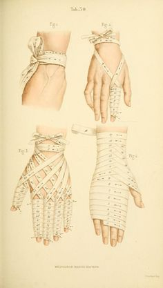 floresetmanus:  Manual of Surgical Bandages, Devices and Dressings 1859